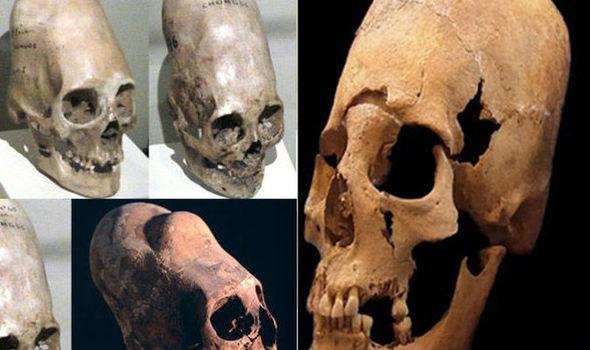 Шокирующе открытие ученых по странному древнему черепу из Германии